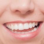 若くても総入れ歯の可能性も!?歯周予防にはガムが効果的!?